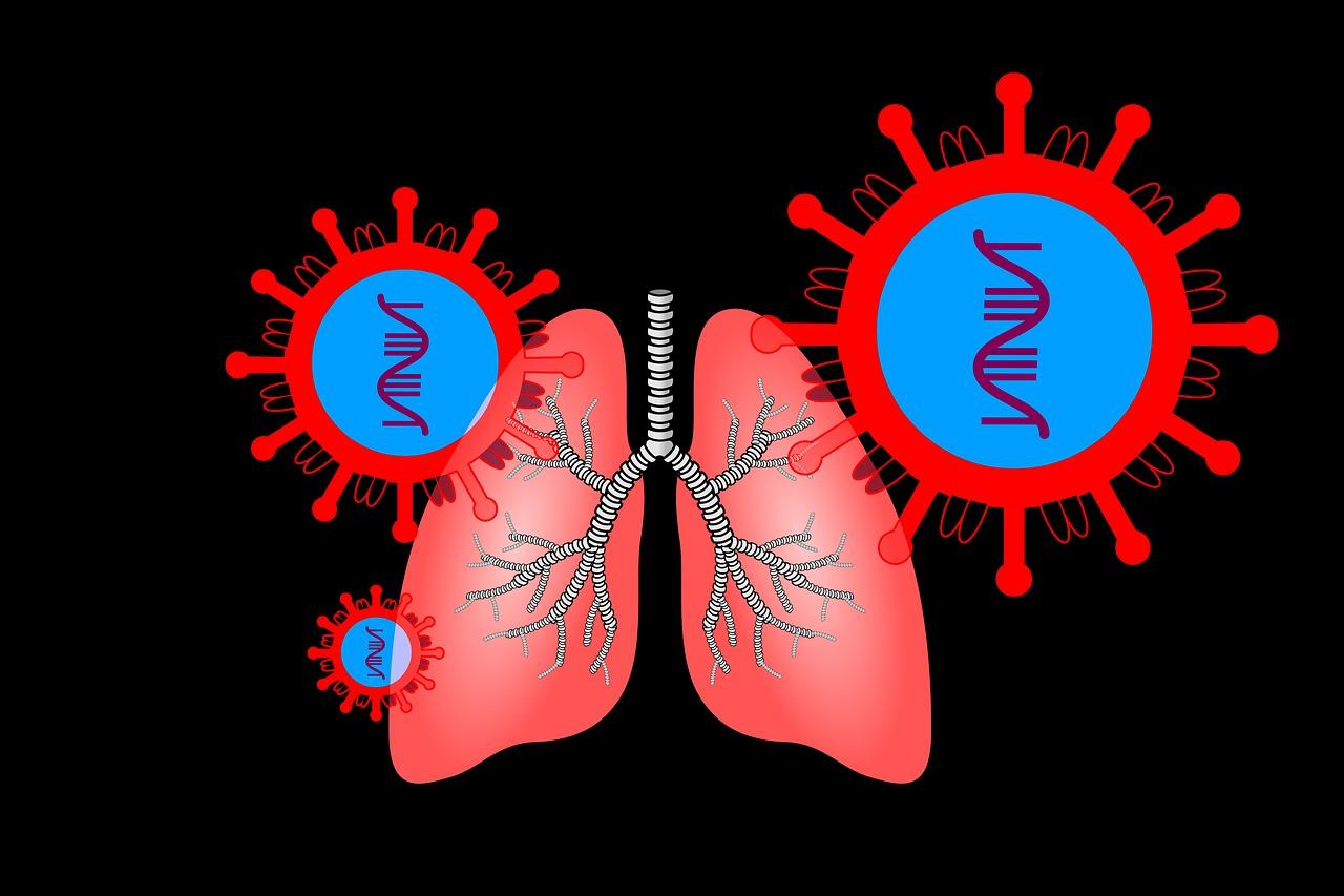Kako lijeciti upalu pluca prirodnim putem