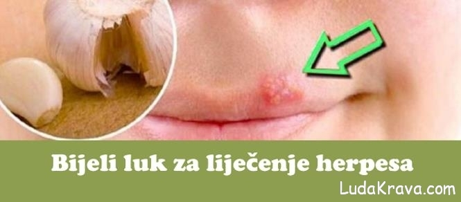 lijek protiv herpesa