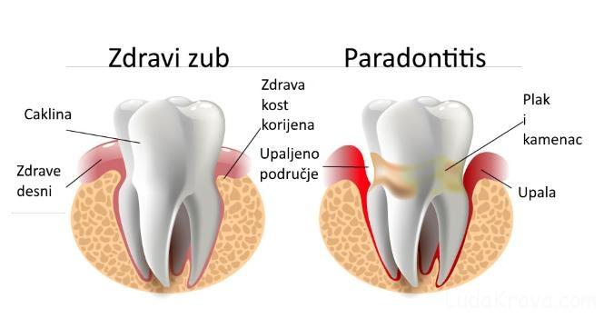 paradontitis
