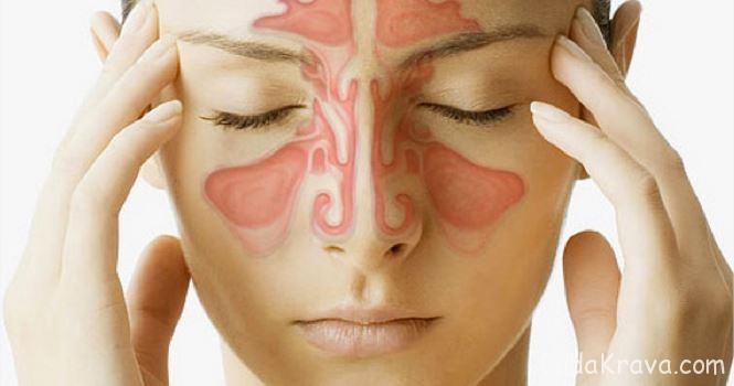 sinusitis