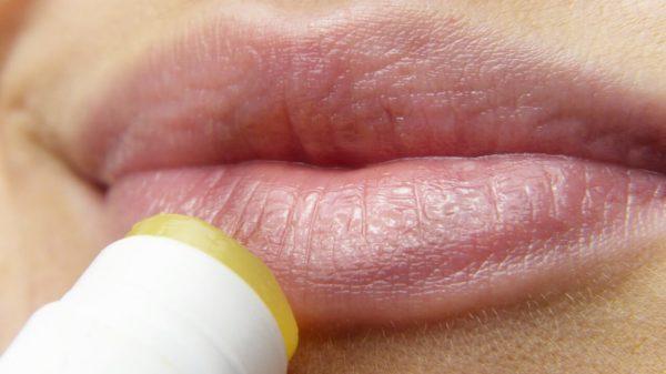herpes simpelx usne